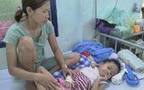 Tin trong nước - Bé gái ở Kon Tum bị chó nhà nuôi cắn hàng chục vết quanh cổ qua cơn nguy kịch