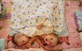 Thương tâm hai bé gái sinh đôi dính liền bị bỏ rơi