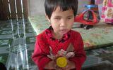 Ước mơ được nô đùa của bé 3 tuổi mắc bệnh teo nhãn cầu