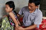 Hoàn cảnh - Cô bé 15 tuổi mang đau đớn bởi căn bệnh ung thư xương quái ác