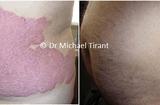 Sản phẩm - Dịch vụ - Nghiên cứu mở đa trung tâm về sản phẩm Dr Michaels thảo dược điều trị vảy nến
