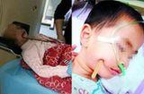 Sức khoẻ - Làm đẹp - Bé gái 3 tuổi ngã cầu thang bị đũa đâm thọc sâu vào não sống sót diệu kỳ