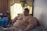 Sức khoẻ - Làm đẹp - Người đàn ông 32 tuổi nặng hơn nửa tấn và 6 năm liên tiếp chỉ nằm trên giường