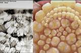 Sức khoẻ - Làm đẹp - Ca bệnh kì lạ: Thiếu niên có tới 232 chiếc răng mọc thừa