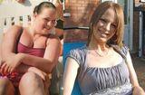 Cộng đồng mạng - Giảm cân cực đoan, bà mẹ trẻ từ béo phì thành người gầy đến rụng cả tóc