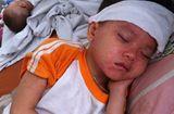 Sức khoẻ - Làm đẹp - Bệnh sởi gia tăng: Phân biệt bệnh sởi với sốt phát ban ở trẻ em