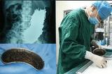 Sức khoẻ - Làm đẹp - Người đàn ông đau bụng 2 tháng, bác sĩ phát hiện 600 cái đinh thép nằm trong dạ dày