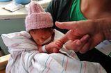 Sức khoẻ - Làm đẹp - Vì sao trẻ sinh non có nguy cơ tử vong cao?