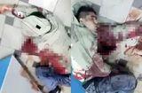 Tin thế giới - Cầu hôn thất bại, thanh niên xấu hổ rút dao đâm chết bạn gái rồi tự sát