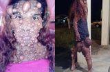 Tin tức - Mắc bệnh lạ, cô gái nổi u toàn thân bị dân làng xa lánh gọi là quái vật