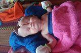 Tin tức - Xót thương bé 2 tháng tuổi bị khuyết não đang chờ một phép nhiệm màu
