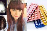 Tin tức - Cô gái đột quỵ vì dùng thuốc tránh thai ở tuổi 17