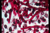 """Y tế - Khủng khiếp loại """"siêu nấm"""" kháng mọi loại thuốc có thể lây rất dễ ở bệnh viện"""