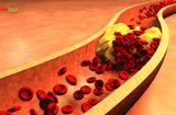 Sức khoẻ - Làm đẹp - Mỡ máu cao chọn làm bạn hay kẻ thù sức khỏe?