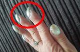 Tin thế giới - Người phụ nữ phát hiện bị ung thư phổi nhờ đi khám móng tay