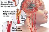 Sức khoẻ - Làm đẹp - Bảo bối giúp ngăn chặn tai biến do mỡ máu tăng cao của người Nhật