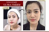 Sức khoẻ - Làm đẹp - Ultra Therm – Công nghệ trẻ hóa làn da, kéo dài thanh xuân