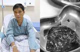 Tin tức - Bệnh nhân may mắn phát hiện bệnh ung thư phổi nhờ đi khám ho khan