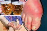 Sức khoẻ - Làm đẹp - Bệnh gout cần kiêng ăn những gì? Người bệnh cần biết để chữa bệnh hiệu quả