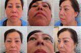 Y tế sức khỏe - Bác sĩ Lê Văn Sẽ - Địa chỉ cứu cánh của những ca phẫu thuật hỏng