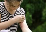 Bệnh nhân mề đay áp dụng đúng phương pháp điều trị đảm bảo tránh tái phát bệnh