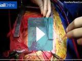 Sức khoẻ - Làm đẹp - Ấn Độ: Người đàn ông 56 tuổi có tới 2 trái tim