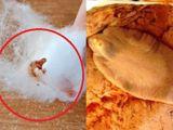 Tin tức - Video: Nổi da gà trước màn nặn mụn ra sán lá gan của cô gái