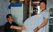 """Bà mẹ mang thai năm, 55 triệu ca mới có một gây choáng với bụng bầu """"to khủng khiếp"""""""