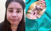 Phẫu thuật hỏng, cô gái trẻ đau đớn vì thanh silicone đâm thủng mũi chòi ra giữa mặt
