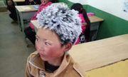 Bé trai tóc đóng băng ở Trung Quốc được hỗ trợ 2,6 triệu USD