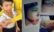 Vụ bé gái nghi bị bố và mẹ kế dí sắt nung: Mẹ ruột đòi quyền nuôi con