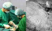 Tự uống lá thuốc điều trị suốt 4 năm vì sợ mổ, đến khi khối u xơ nặng tới 4kg