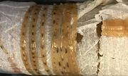 Ăn gỏi cá bị nhiễm sán dây dài 1,7 m