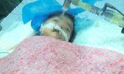 Bé 8 tháng bị tiêm nhầm thuốc nguy kịch, có dấu hiệu chết não
