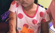Bé gái 7 tuổi nghi bị cha ruột, mẹ kế bạo hành có dấu hiệu hoảng loạn