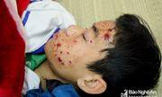 Điện thoại nổ khi đang sạc, nam sinh lớp 8 ở Nghệ An nhập viện