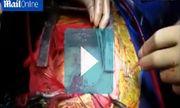 Ấn Độ: Người đàn ông 56 tuổi có tới 2 trái tim