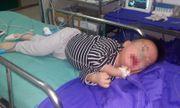 Bé trai 15 tháng tuổi bị xương cắm ngang thực quản sau khi ăn cháo cá