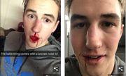 Đòi chia tay, nam sinh Mỹ điển trai bị bạn gái đấm chảy máu mũi