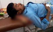 Bác sĩ bị đình chỉ công tác vì dùng chi cắt rời của bệnh nhân làm gối