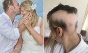 Cô dâu rụng 90% tóc trên đầu vì quá lo lắng chuẩn bị cho đám cưới