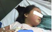 Thực hư vụ bé gái 5 tuổi nổi mẩn khắp người nhập viện cấp cứu nghi do ngộ độc trà sữa