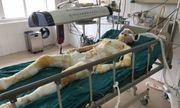 Cô gái bị người yêu tẩm xăng thiêu ở Vĩnh Phúc đã tử vong