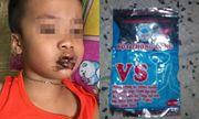 Bé trai 1 tuổi nhập viện vì ăn phải bột thông bồn cầu
