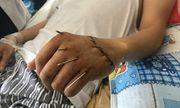 BV Đà Nẵng: Nối thành công bàn tay đứt lìa cho một bệnh nhân