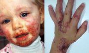 Bé gái 3 tuổi lở loét miệng, khắp người rộp mụn nước chỉ vì nụ hôn của người bố