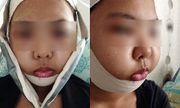 Báo động độ tuổi thực hiện phẫu thuật thẩm mỹ tại Singapore