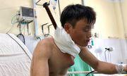 Nam công nhân bị thanh sắt đâm xuyên từ cổ xuống ngực được cấp cứu kịp thời