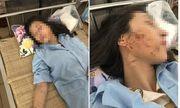 Khởi tố 3 phụ nữ đánh ghen lột đồ, đổ nước mắm vào chủ tiệm spa ở Thanh Hóa