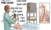 Vụ bệnh nhân tử vong sau nội soi: Bệnh viện Bạch Mai công bố nguyên nhân
